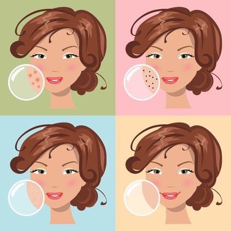 Acne - remedies in homeopathy
