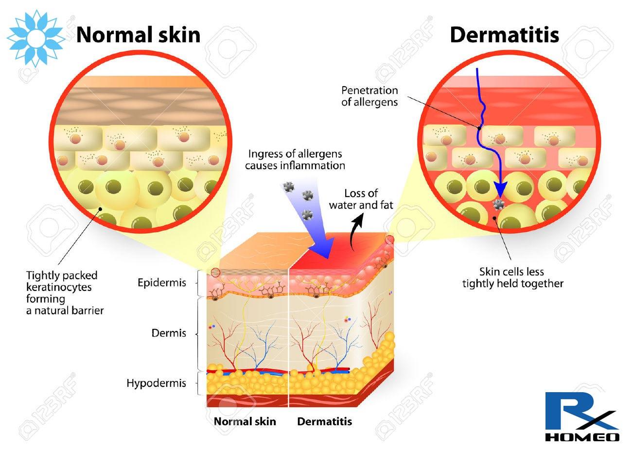 Eczema, Dermatitis - remedies in homeopathy