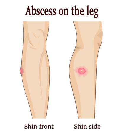 Abscess - remedies in homeopathy