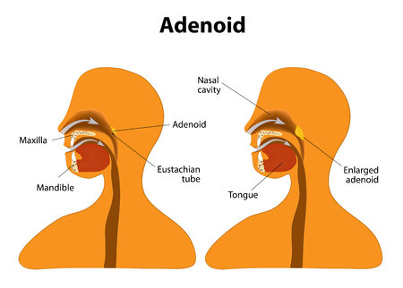 Adenoids - remedies in homeopathy