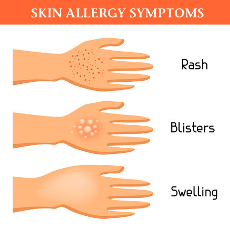 Allergic Rashes - remedies in homeopathy