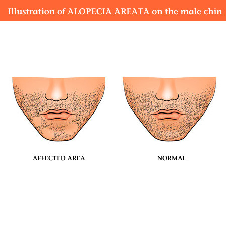 Alopecia - remedies in homeopathy